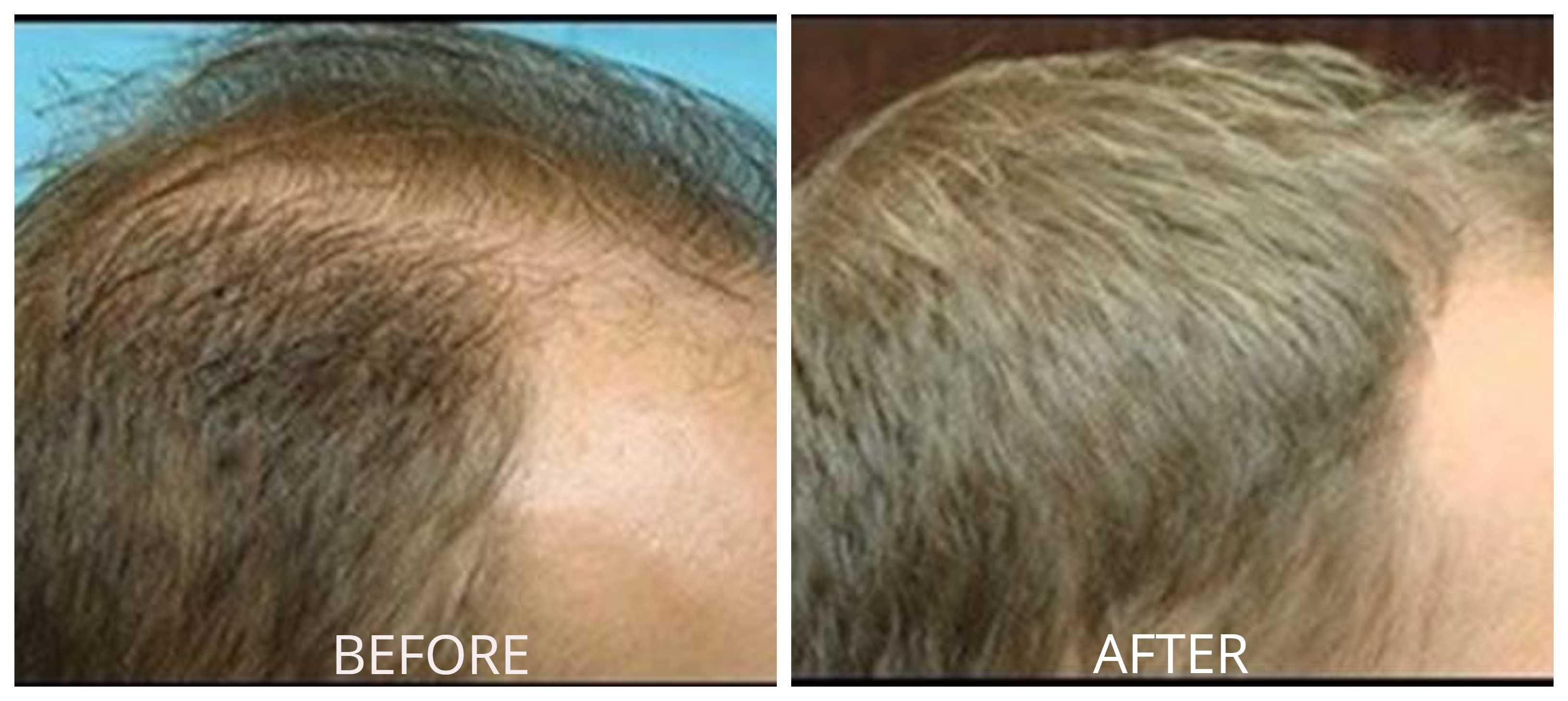 Everything To Know About Orange County Hair Restoration